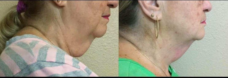 Neck Before & After