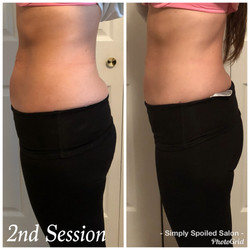 Lori Before & After 2 Treatments2