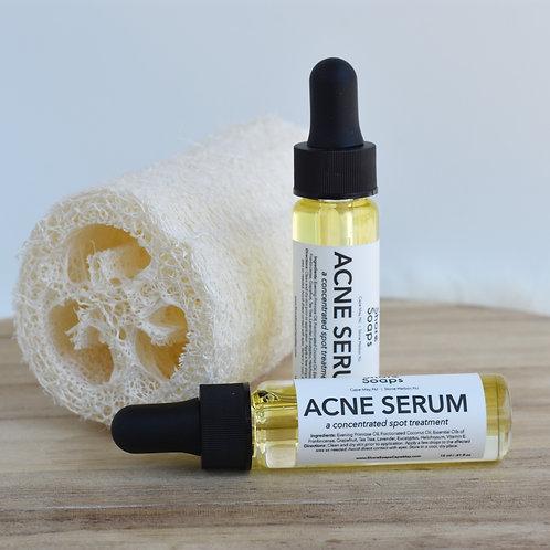 ACNE SERUM // Spot Treatment Dropper // Essential Oils // Natural Skincare // Pr