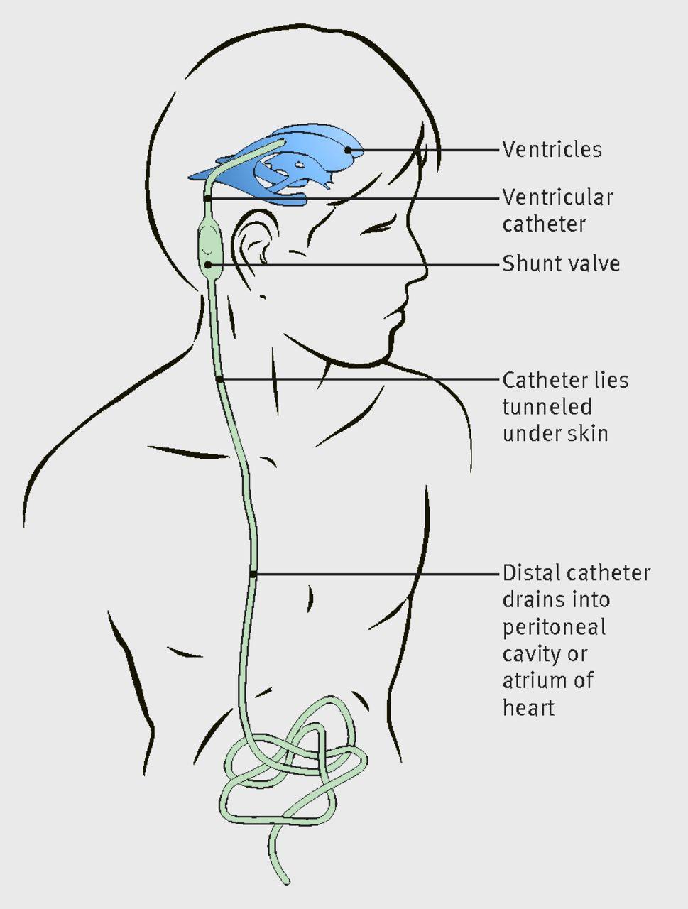 Kafatası içerisinde biriken sıvı miktarı fazlalaşınca hidrosefali görülür. Fazla sıvıyı dışarı atmak için kabaca beyinden sindirim yollarına giden cerrahi bir yol açılır.