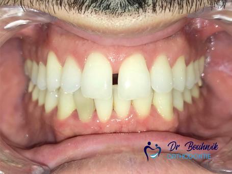 Patient traité en Invisalign par le Dr Daniel Bouhnik, Orthodontiste à Paris
