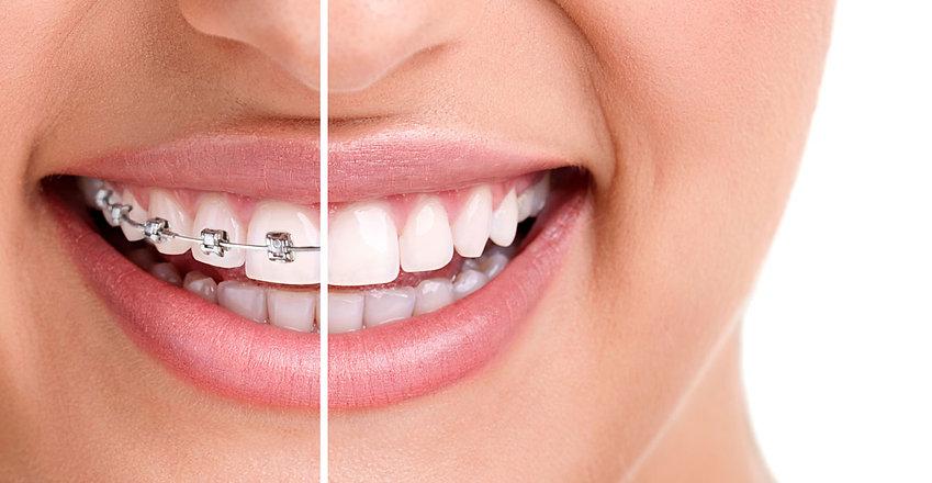 braces-aesthetics-2.jpg