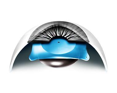 03.Aqua ICL.jpg