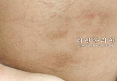 접촉성피부염(7)