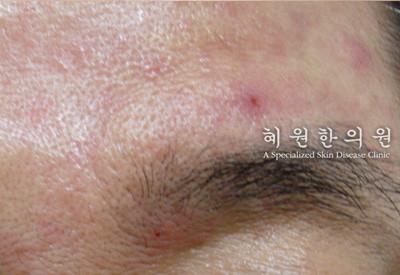 지루성피부염(13)
