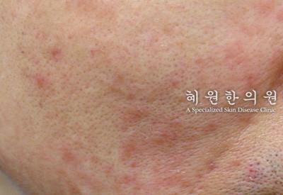 지루성피부염(12)