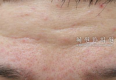 지루성피부염(15)