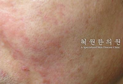 지루성피부염(14)