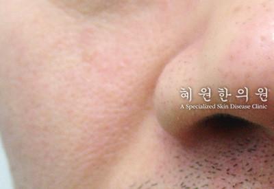 지루성피부염(1)