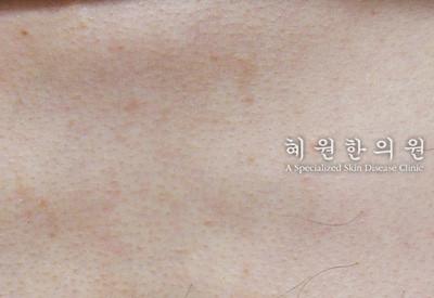 지루성피부염(11)