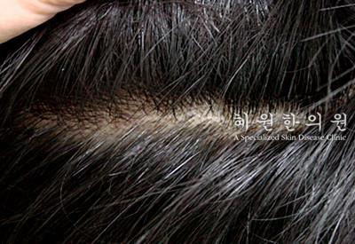 지루성피부염(10)