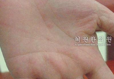 접촉성피부염(9)