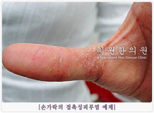 접촉성피부염의 원인 및 분류