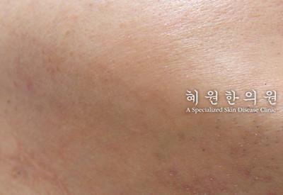 지루성피부염(7)