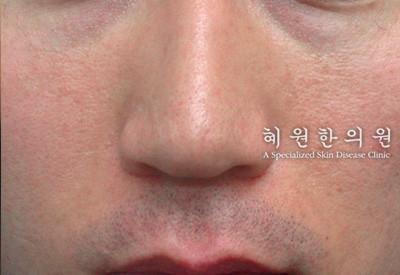 안면홍조(3)