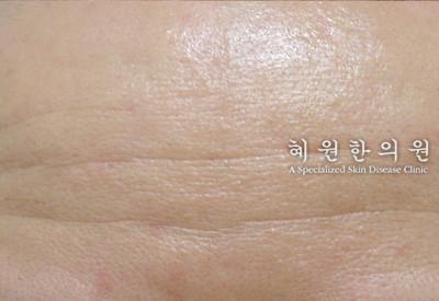 지루성피부염(4)