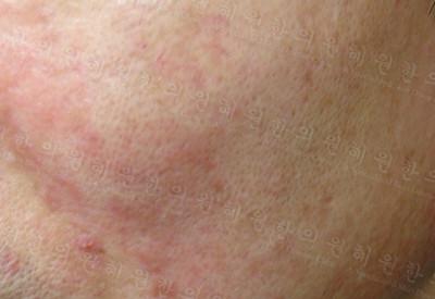 지루성피부염은 가려움을 동반하지만 그리 심하지는 않습니다.