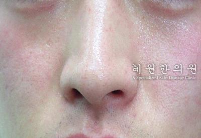 안면홍조(8)