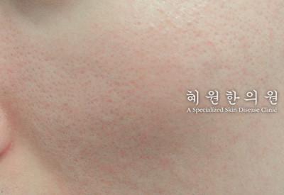 지루성피부염(5)