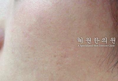 안면홍조(5)