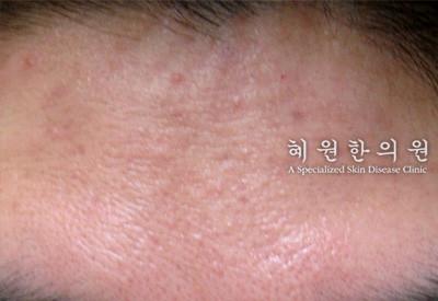 안면홍조(4)