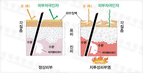 지루성 피부염은 왜 생기나요?