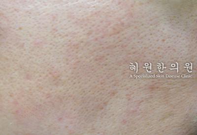 지루성피부염(6)
