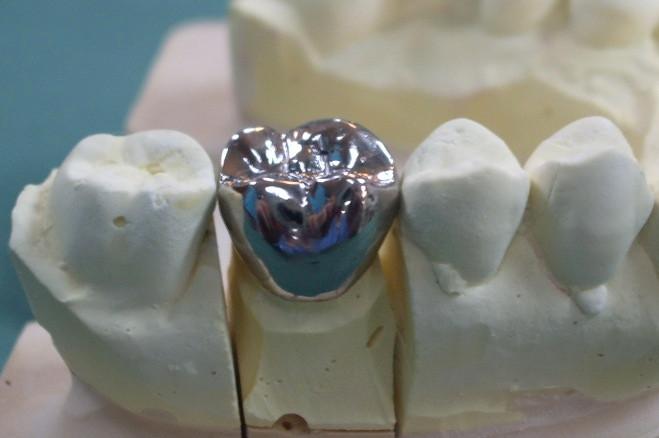 おもと総合歯科医院の補綴物,噛み合わせ,金属冠