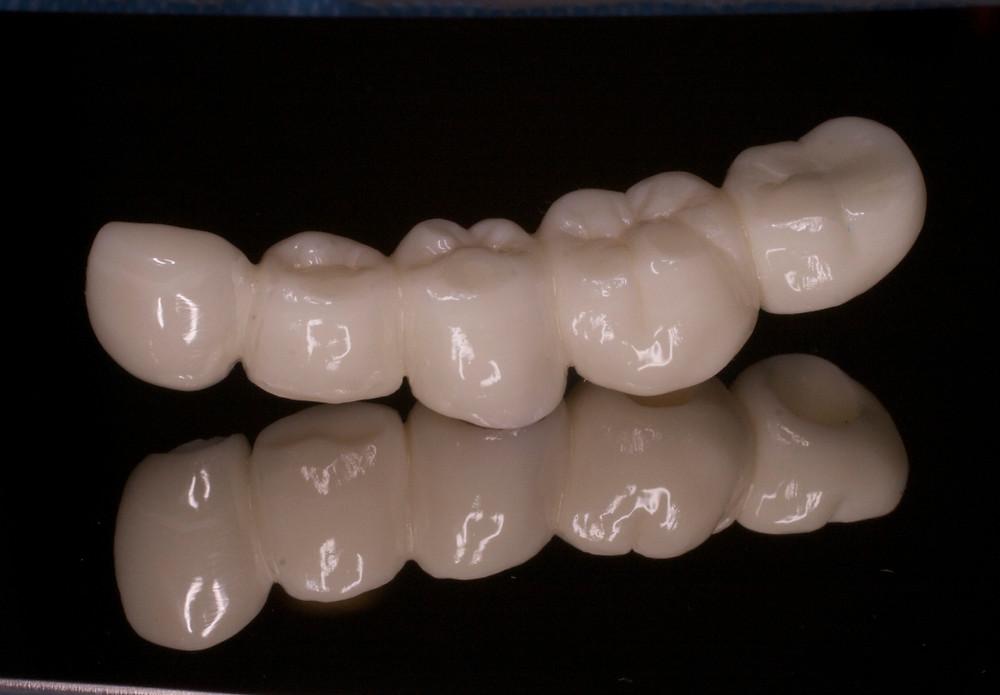 おもと総合歯科医院の外来での治療を受けることができるジルコニアクラウン