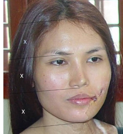 Before-After-Reconstructive-54-2.jpg