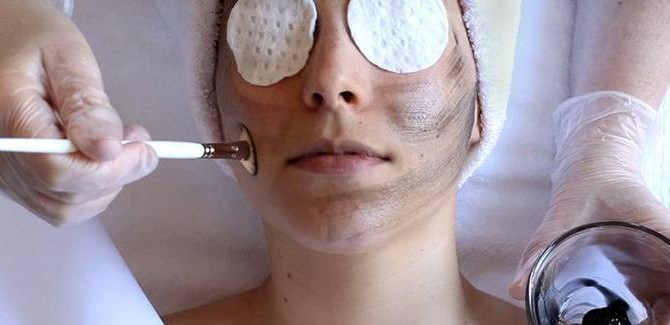 Do chemical peels hurt? 5 myths and the facts