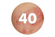 Acne at 40: Adult acne remedies for women with acne