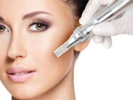 At-Home Microneedling: Should You Consider It?