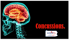 Concussion opening Slide.png
