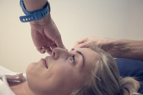 Hva er akupunktur og hvordan brukes det på Helsehuset Greaaker?
