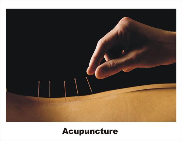 Acupuncture - Copy.jpg