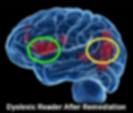 Image of the dyslexic brain after receiving multisensory, explicit instruction.