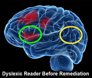 Image of the dyslexic brain while reading - less activation.