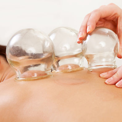 Chinese-cupping-therapy-massage-glasgow.