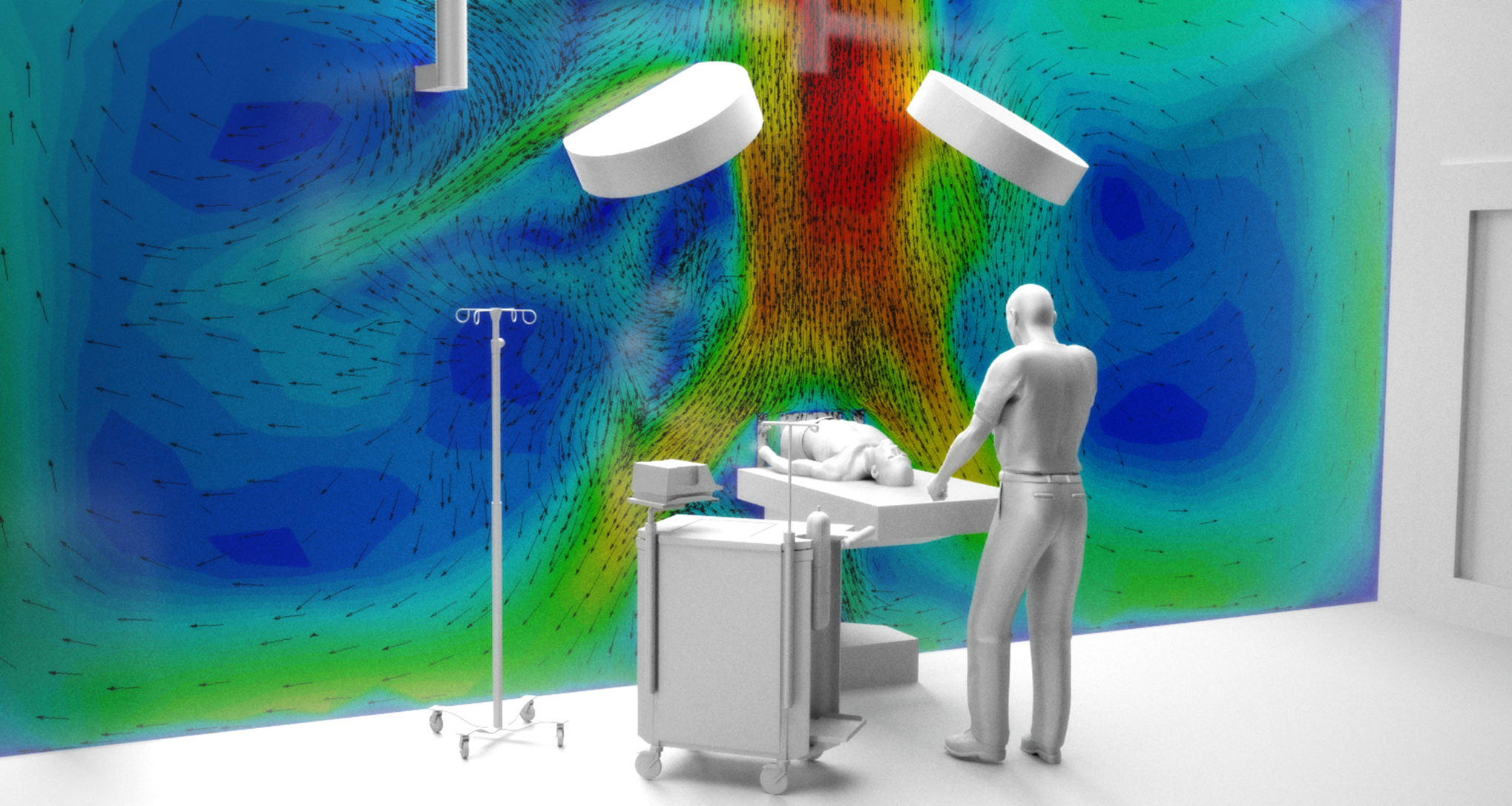 CFD of surgery airflow