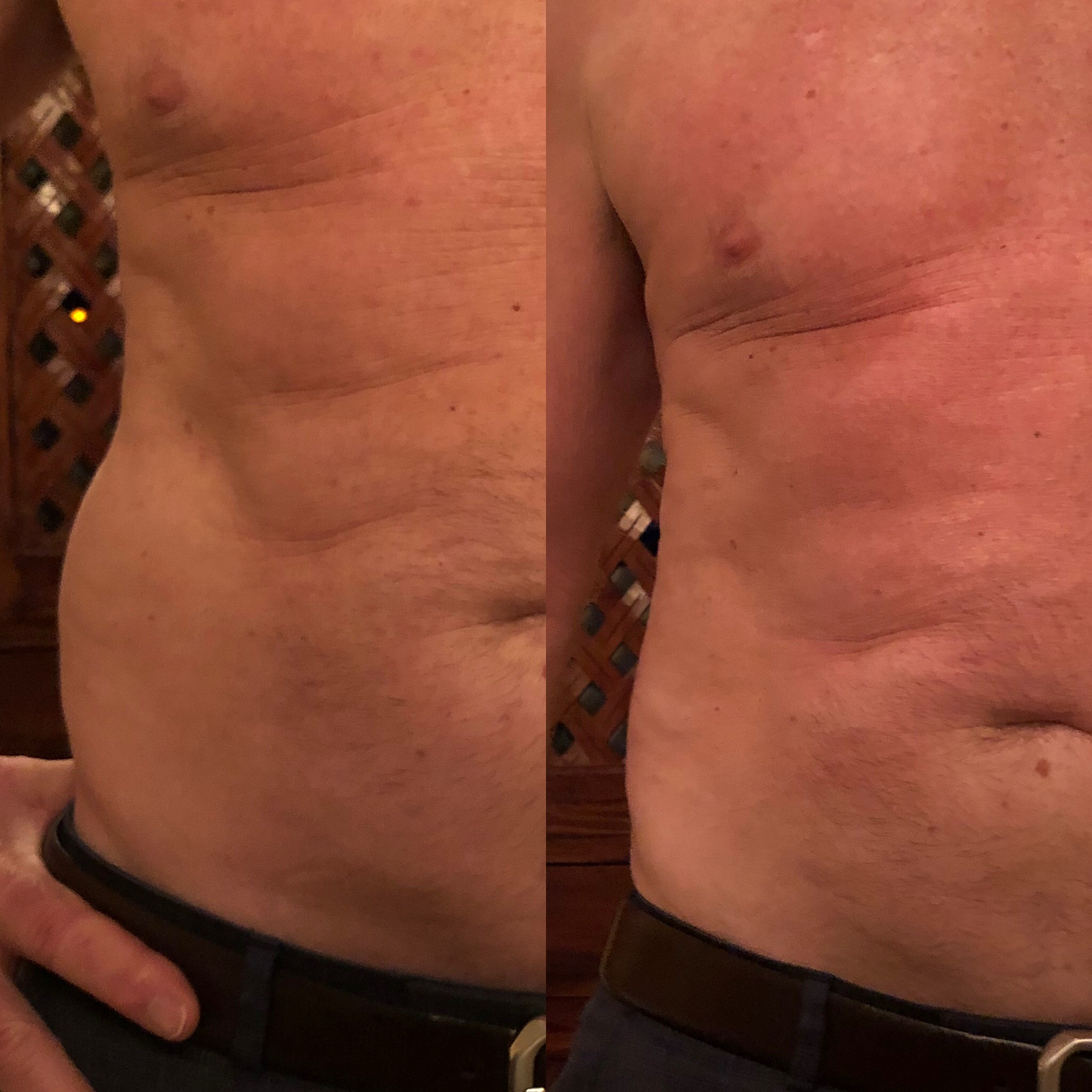 Love Handles- Before & After
