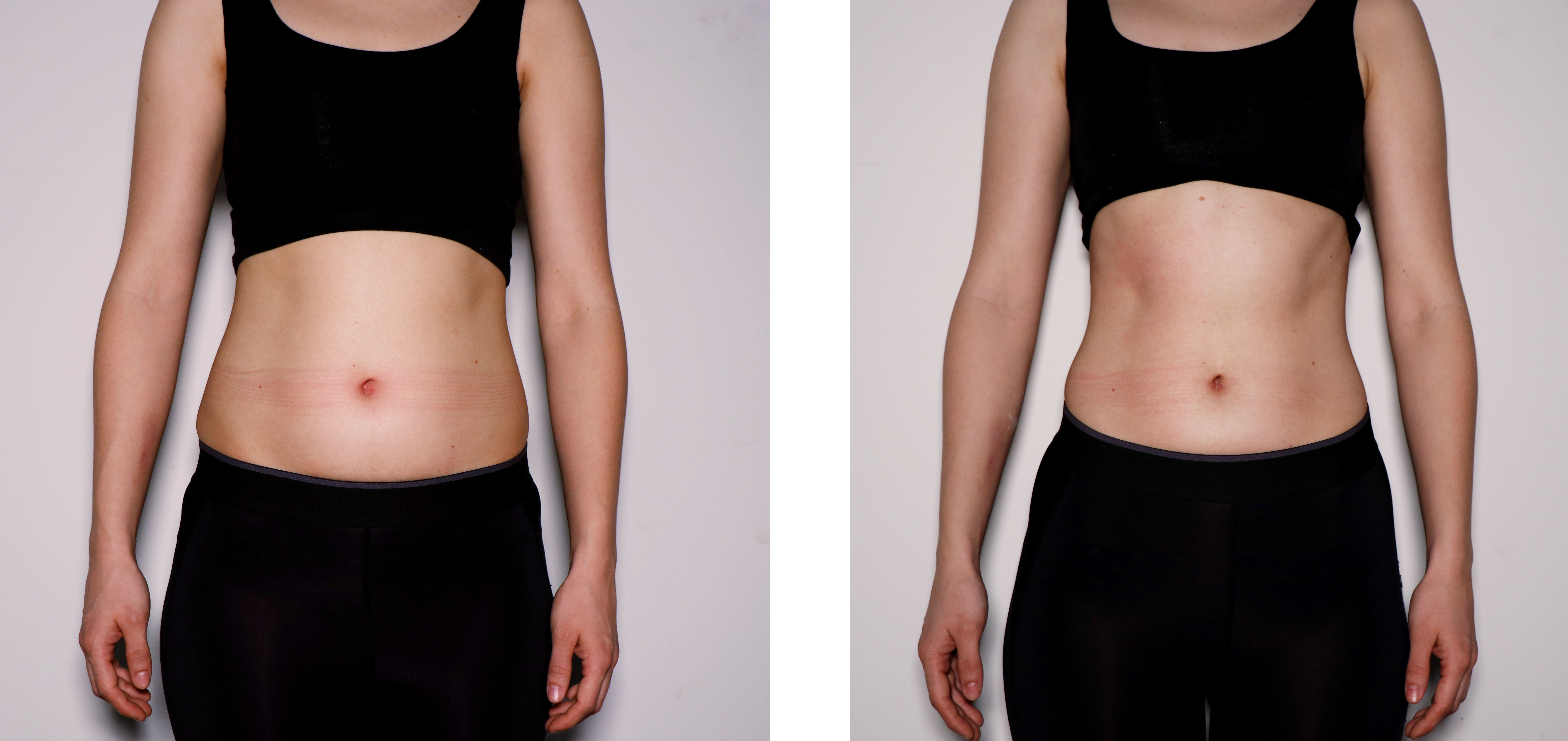 Female Abdomen Toning- Before & After
