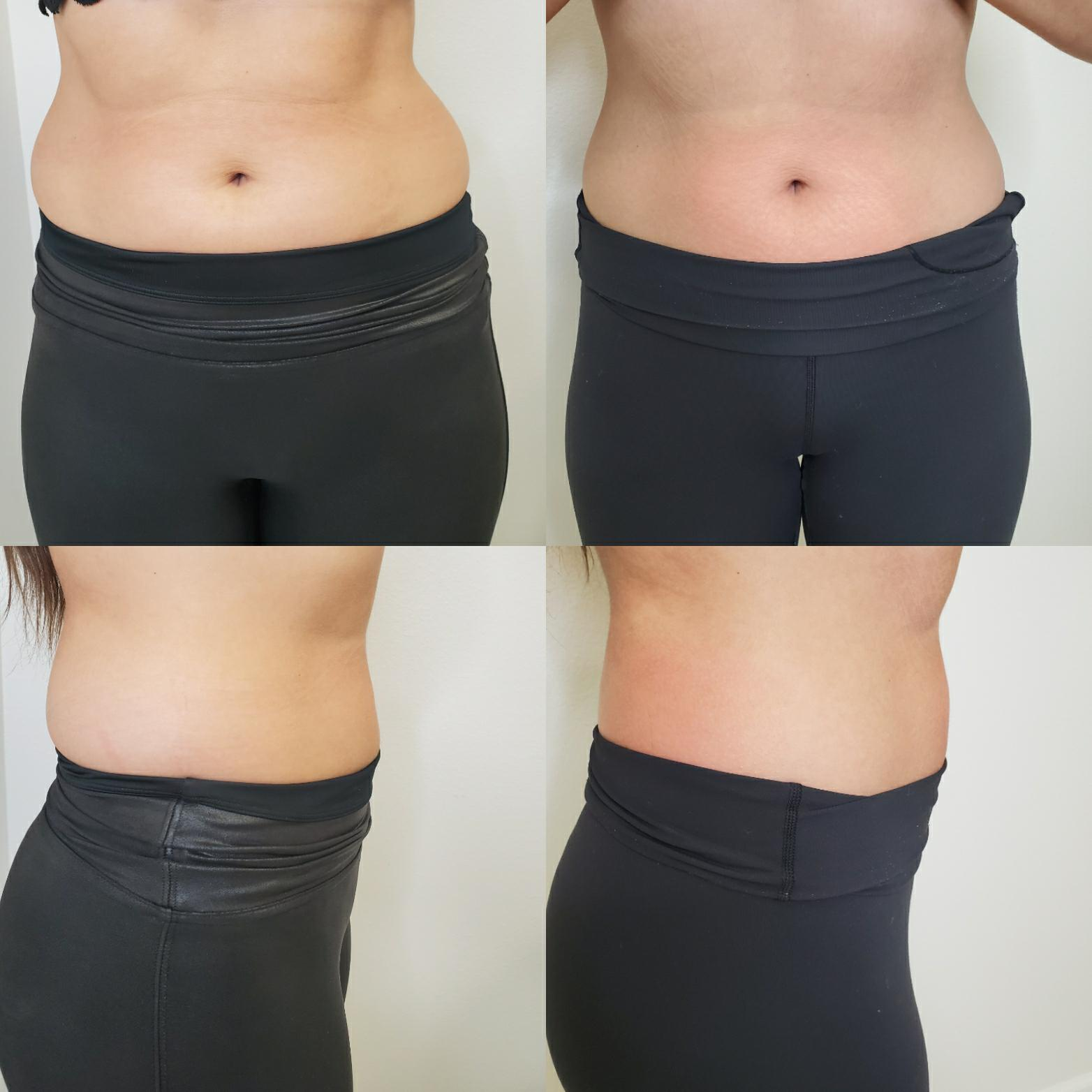 cryoslimming after 3 treatments