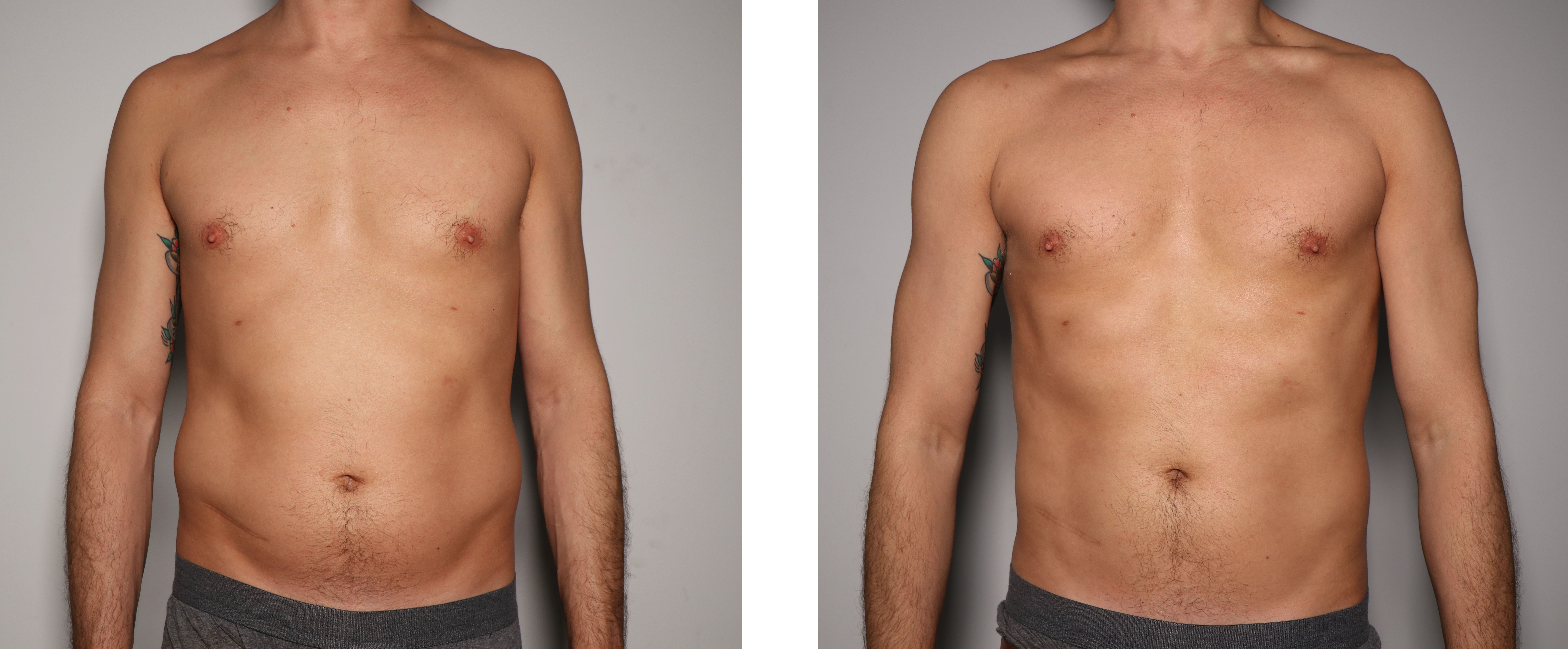 Male Abdomen Toning- Before & After