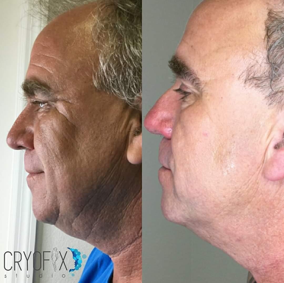 cryofacial after 5 treatments