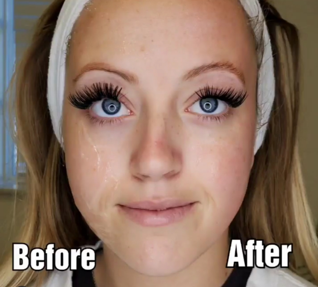 cryofacial after one treatment!