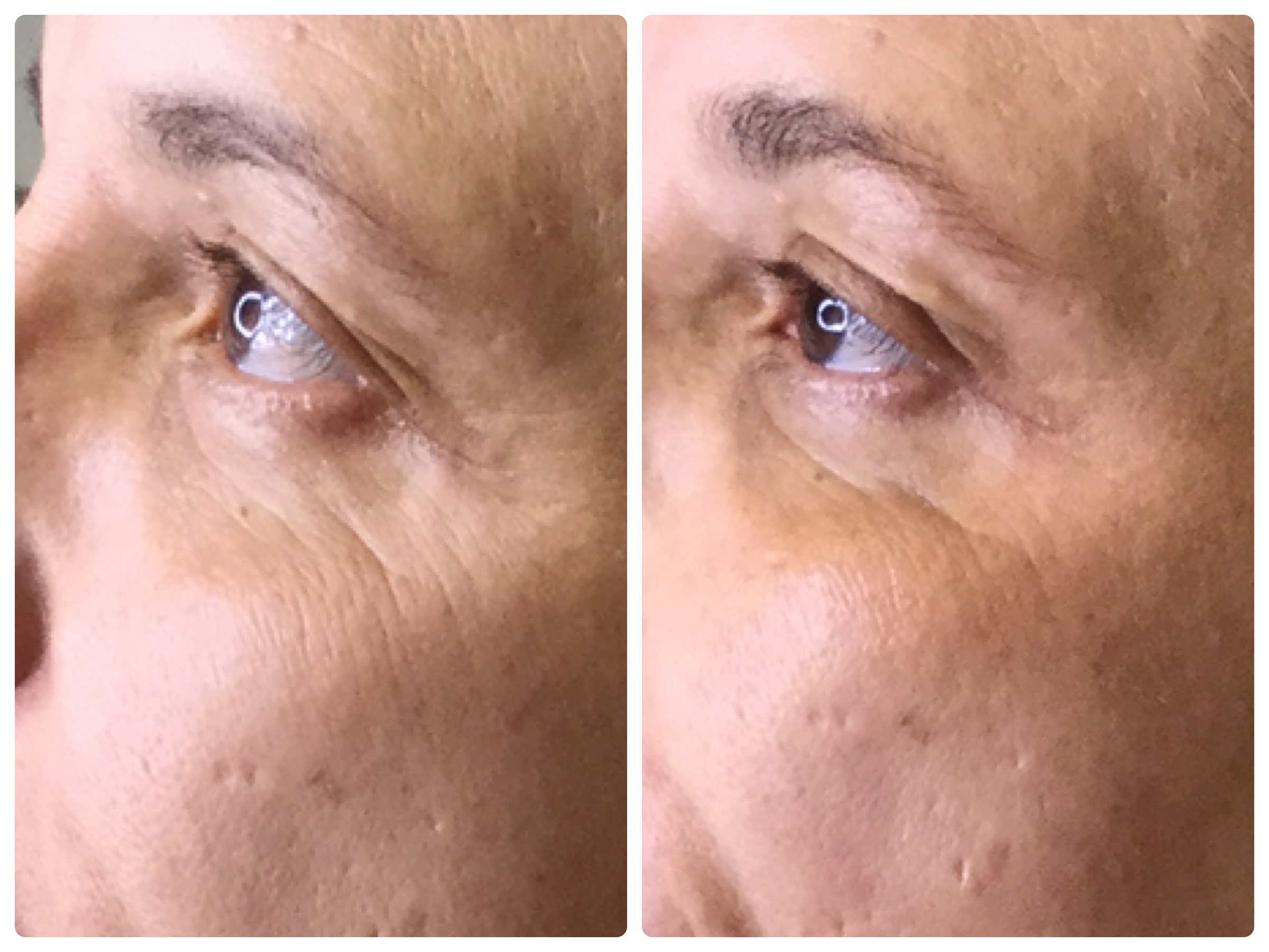 cryofacial after only ONE treatment!