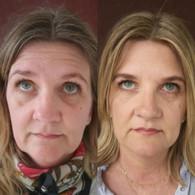 """Før/Efter - Botox i pande og """"bekymringsrynke"""""""