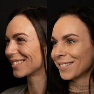 Før/Efter - Botox i smilerynker