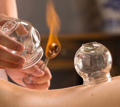 Cupping-therapy_edited.jpg